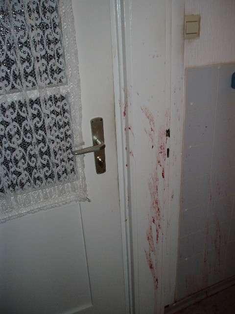Bloodcoloured vomit